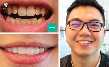 Tẩy trắng răng có nên hay không? | Nha khoa ODA