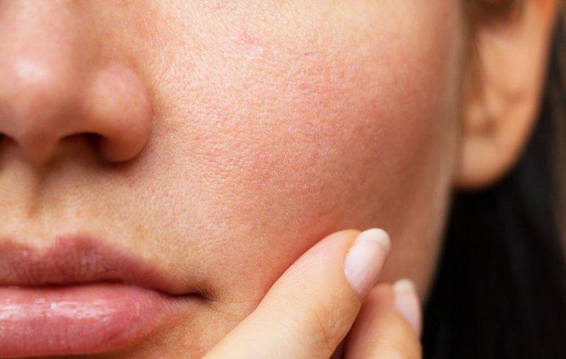 Những lưu ý khi chăm sóc se khít lỗ chân lông