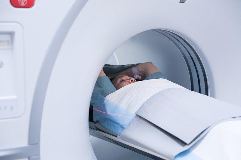 Chụp Cộng Hưởng Từ (MRI) Não Có Ảnh Hưởng Gì Không?