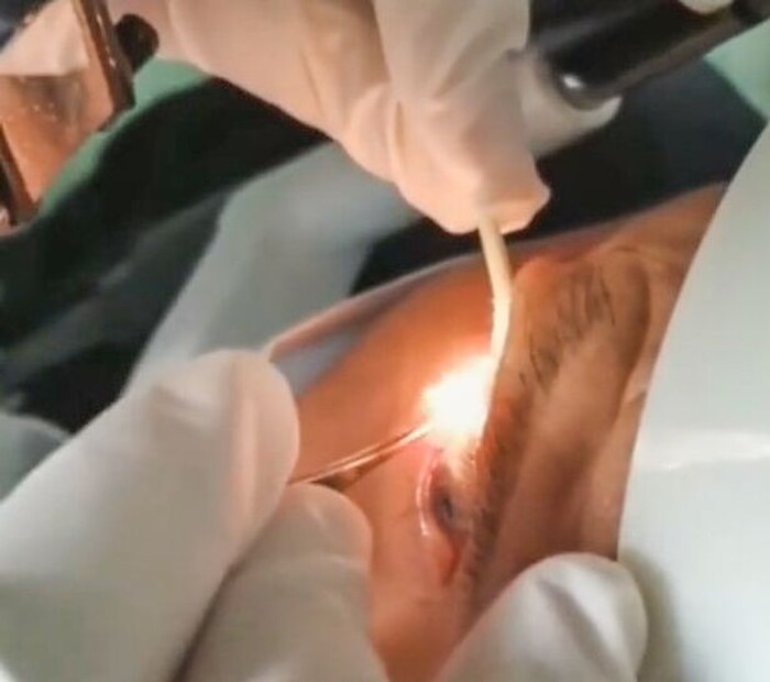 Rùng mình khoảnh khắc bác sĩ gắp 20 con giun khỏi mắt bệnh nhân