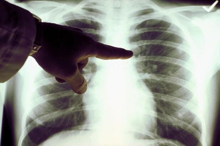Dịch sệt như thạch trong phổi của bệnh nhân COVID-19