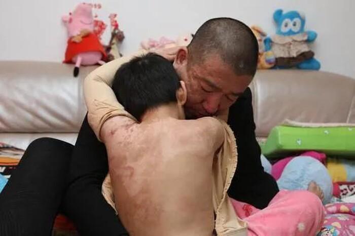 Sống cùng mẹ ruột và bạn trai của mẹ vài tháng, bé gái 6 tuổi bị bẻ răng, dội nước sôi