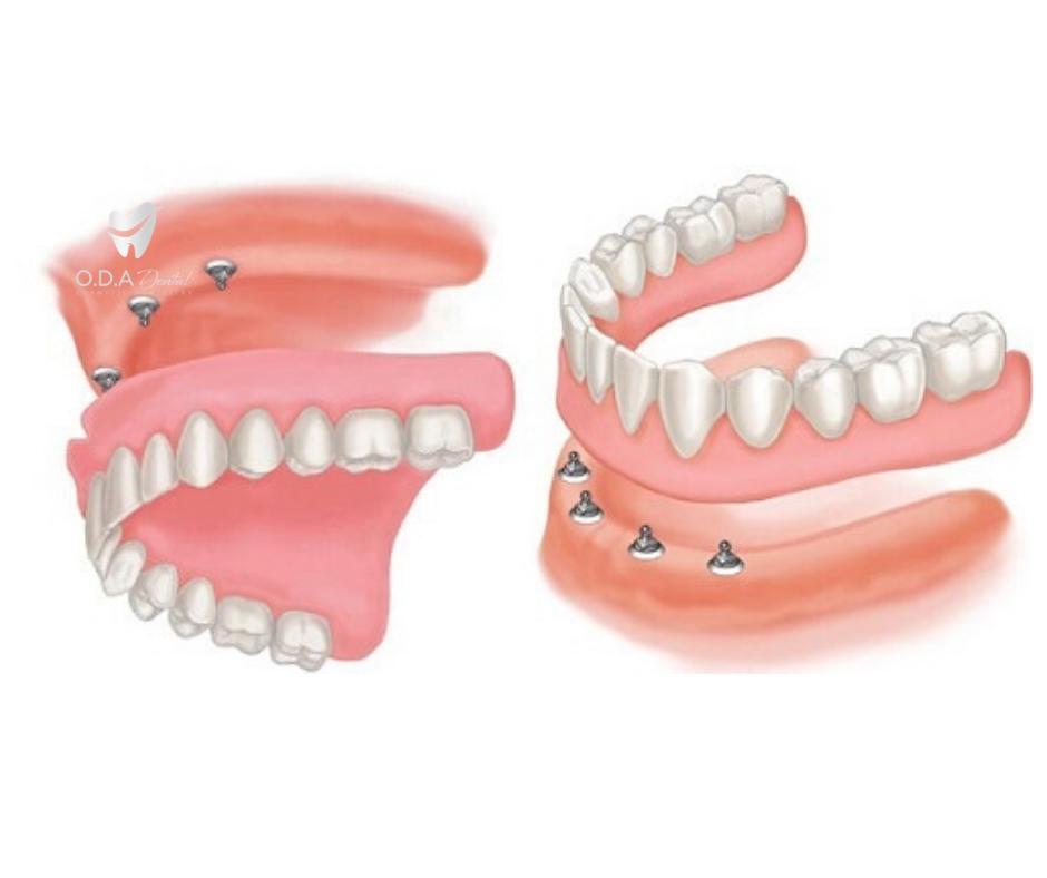 Làm răng giả cho người già nên dùng loại răng tháo lắp nào?