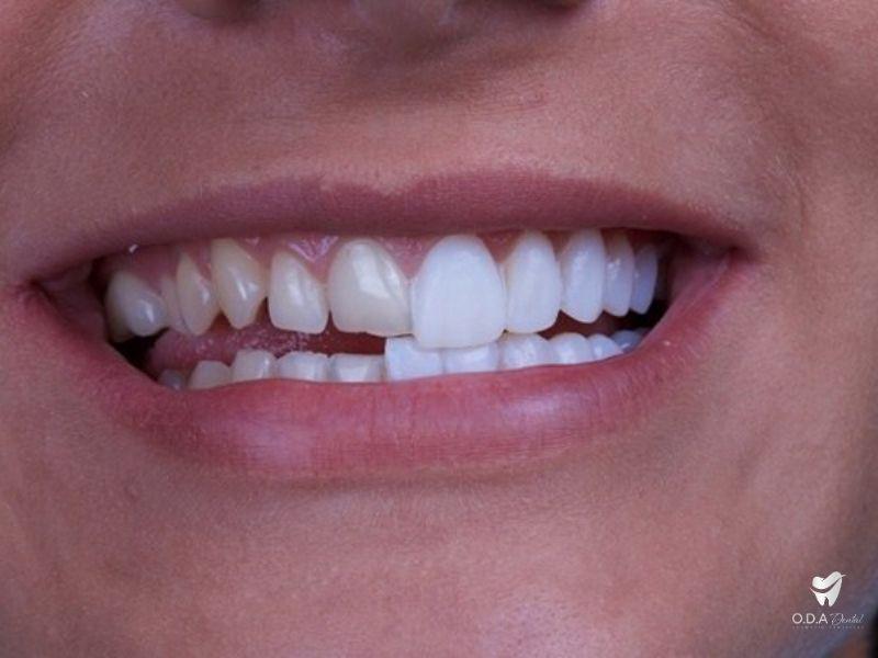 Nha khoa làm sứ | Những lí do khiến bạn nên trồng răng sứ toàn sứ
