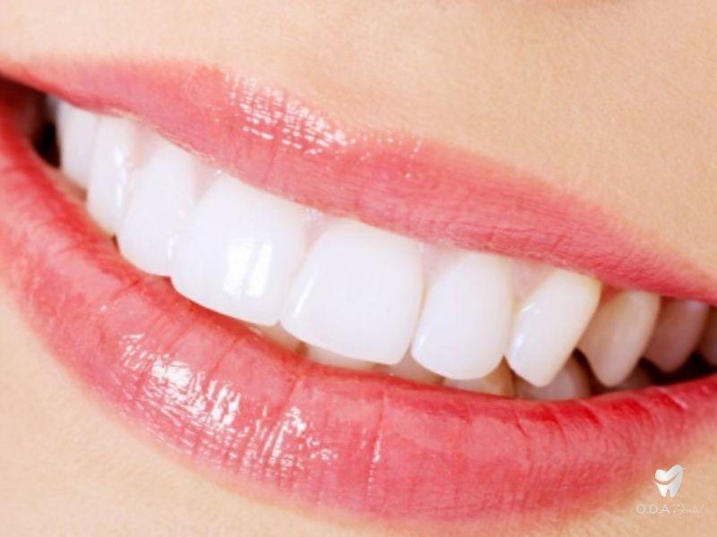 Implant Là Gì? Những Ưu Điểm Mà Trồng Răng Implant Mang Lại