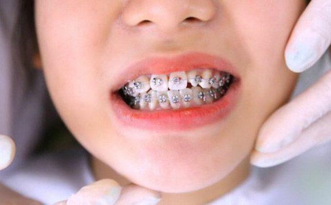 Niềng răng bị hóp má liệu có đúng? Cách khắc phục hiệu quả