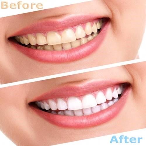 [Nha khoa TP HCM] Các phương pháp tẩy trắng răng hiện nay