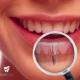 Cấy ghép Implant – Giải pháp làm răng giả tốt nhất cho người già