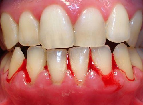 Tại sao niềng răng lại bị chảy máu nướu? Nguyên nhân do đâu