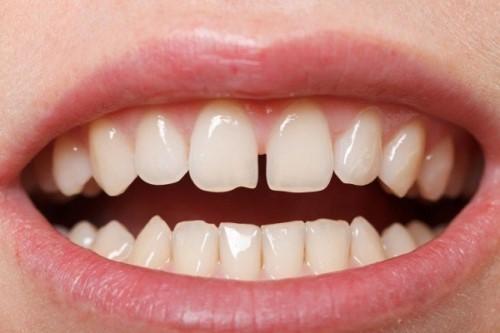 Trồng răng sứ   Giải pháp thẩm mỹ an toàn cho răng thưa