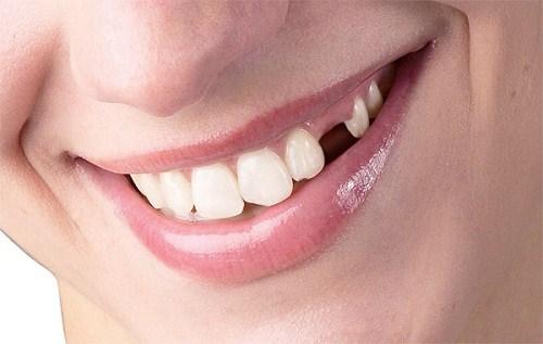 [Nha khoa ODA] Chi phí trồng răng sứ hiện nay là bao nhiêu?