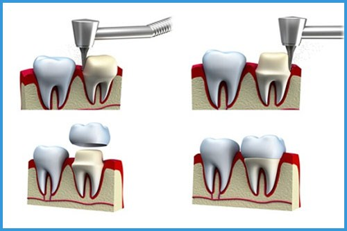 Nha khoa răng sứ   Có nên trồng răng sứ kim loại cho răng cửa không?