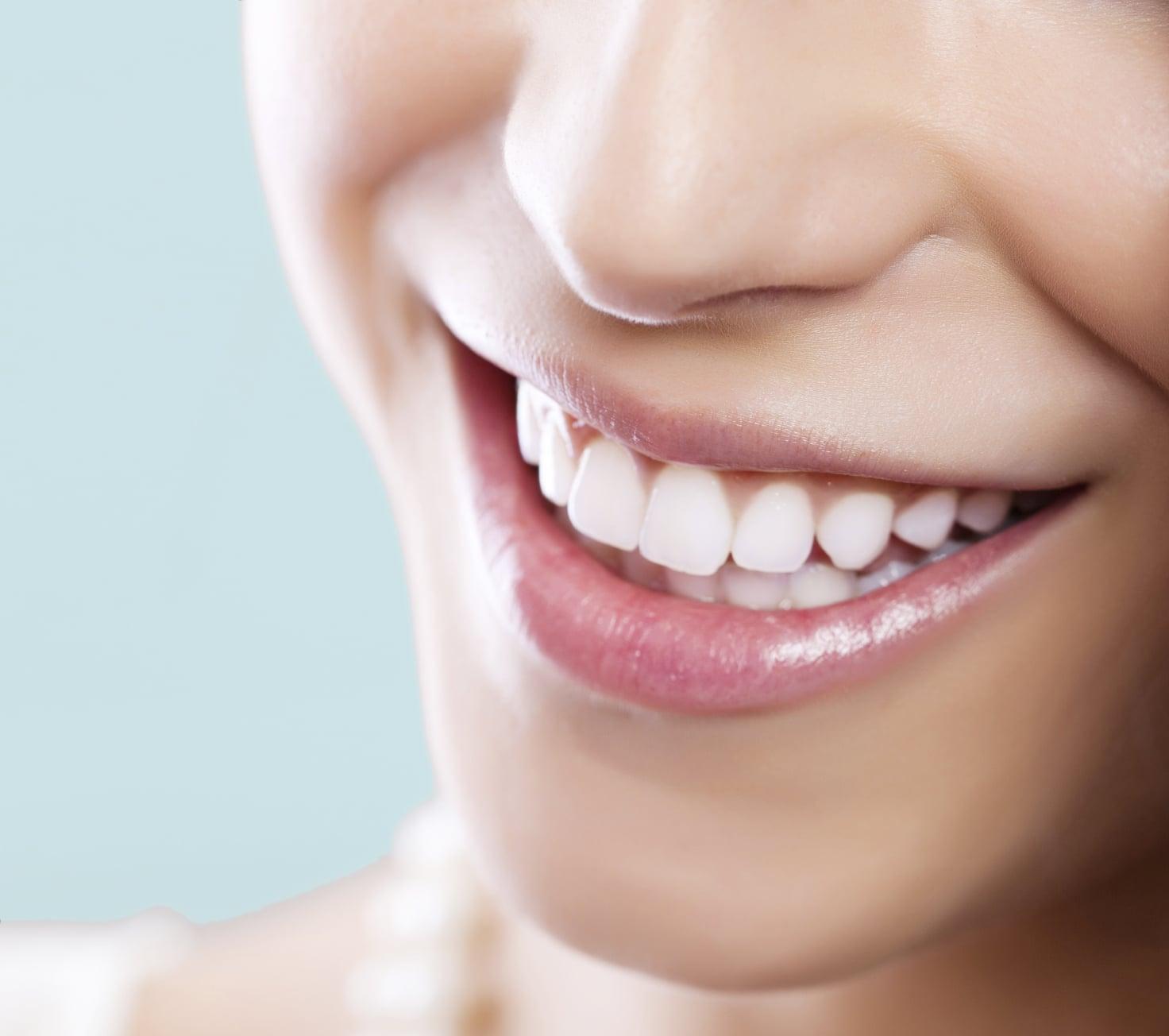 Làm thế nào để tẩy trắng răng hiệu quả khi đang niềng răng?
