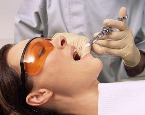 Tìm hiểu nguyên nhân bị đau khi trồng răng sứ và cách chăm sóc hiệu quả