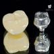 Tổng quan về phương pháp trồng răng sứ   Giá làm răng sứ implant