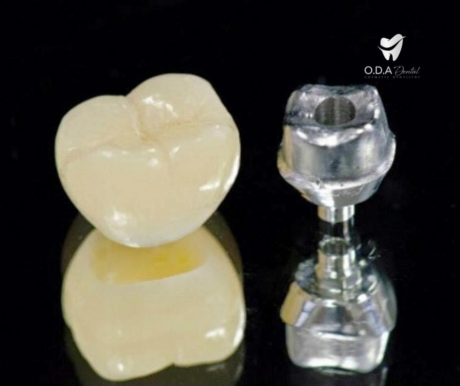 Tổng quan về phương pháp trồng răng sứ | Giá làm răng sứ implant
