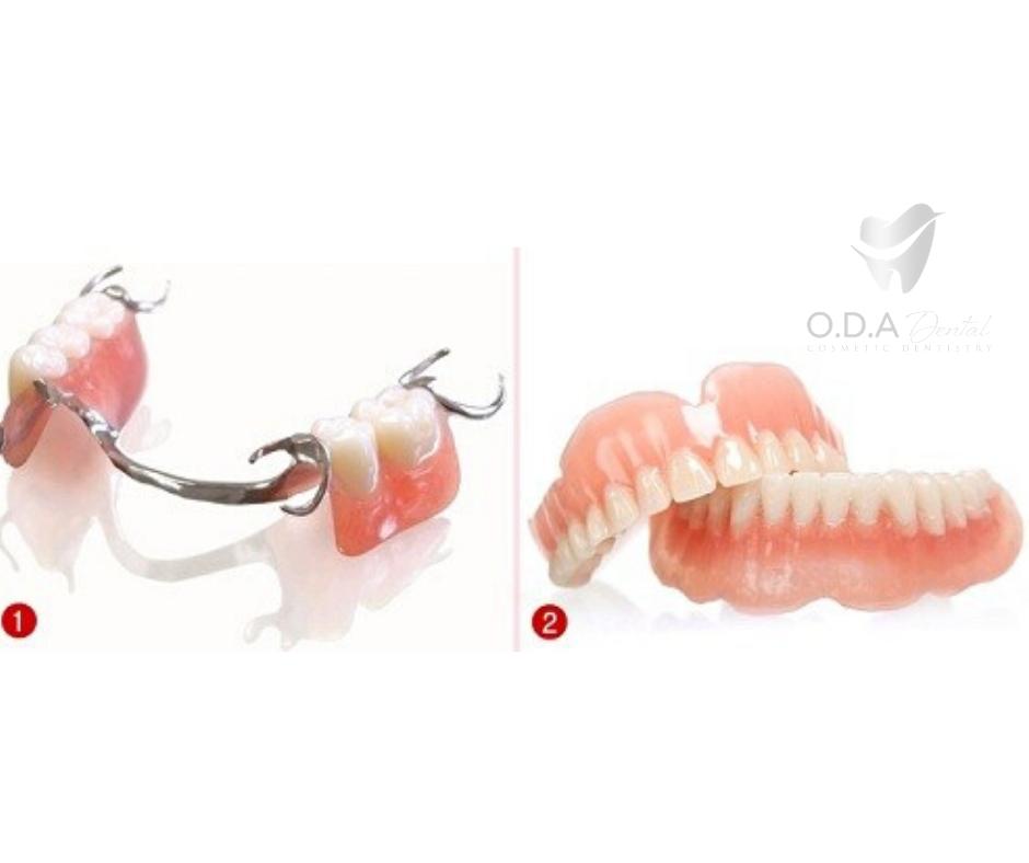 Làm răng giả tháo lắp có tốt không? Giá làm răng giả là bao nhiêu?