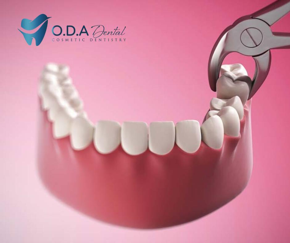 Tại sao khi niềng răng cần phải nhổ răng khôn? | Nha khoa ODA