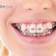 Niềng răng khấp khểnh hiệu quả với nha khoa ODA