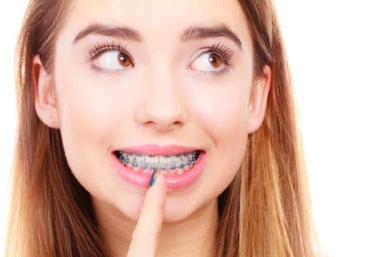 Tại sao niềng răng lại bị hở lợi? Cách khắc phục hở lợi ra sao?