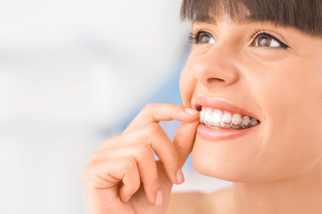 Những điều bạn nên biết về phương pháp niềng răng trong suốt