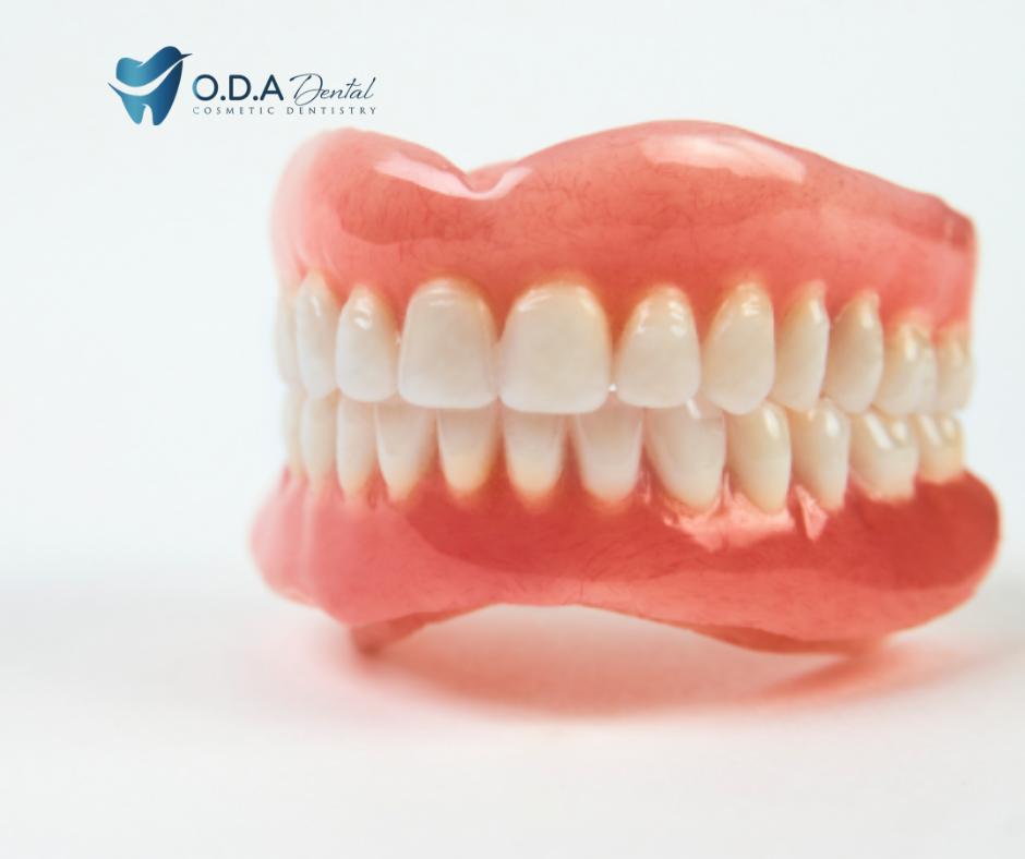 Phân tích đặc điểm của các loại hàm răng giả tháo lắp hiện nay
