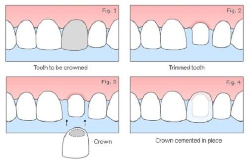 [Nha khoa răng sứ] Tổng quan về phương pháp trồng răng sứ