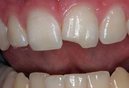 Nha khoa răng sứ   Những biến chứng có thể gặp khi bọc răng sứ