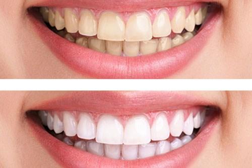 Liệu cạo vôi răng có giúp răng trắng sáng hơn không?