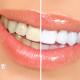 Giải đáp những thắc mắc của bạn trước khi tẩy trắng răng