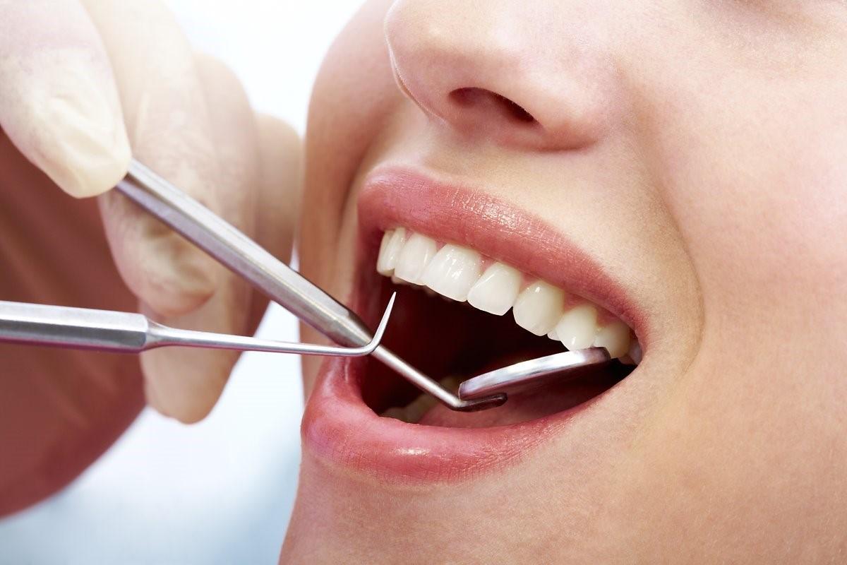 Liệu tẩy trắng răng có hại gì đến sức khỏe răng miệng không?
