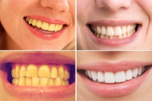 Tìm hiểu phương pháp tẩy trắng răng bằng máng tẩy tại nhà