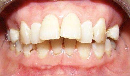 Những giai đoạn tốt nhất để niềng răng mà bạn nên biết