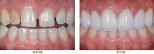 [Nha khoa răng sứ] Tất tần tật về phương pháp trồng răng sứ thẩm mỹ