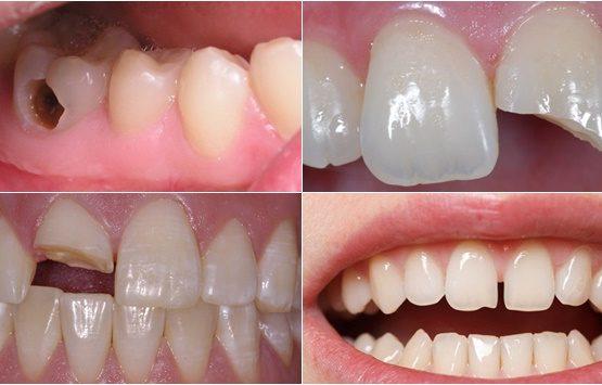 [Nha khoa uy tín hcm] Khi nào nên trám răng và trám ở đâu mới tốt?