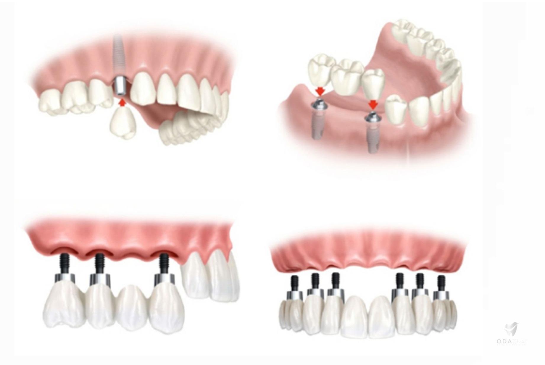 Lưu ý khi trồng implant và bảng giá làm răng implant