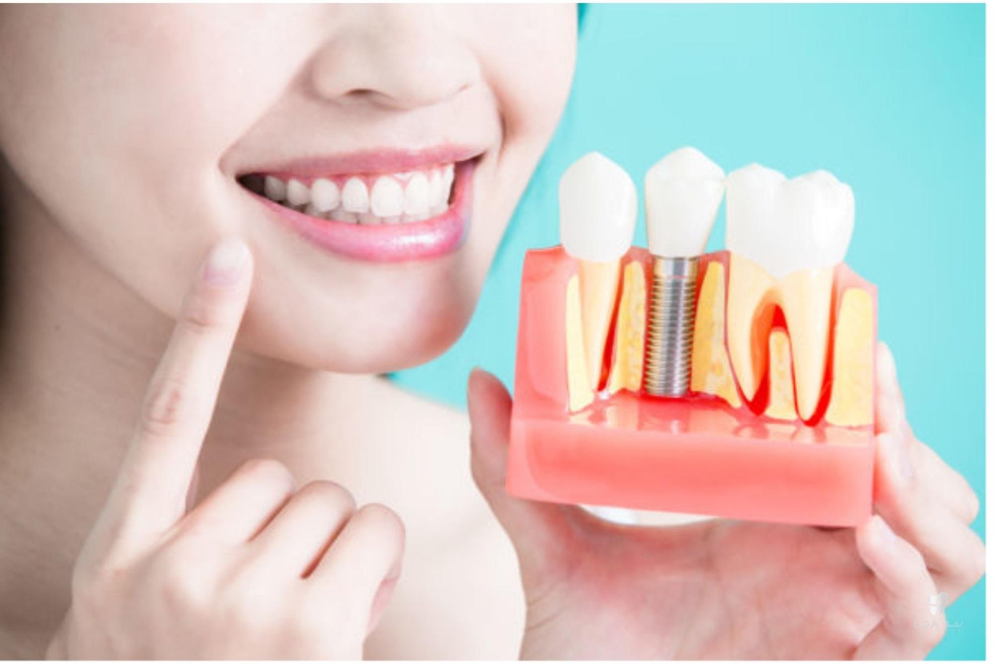 Trồng Răng Implant Uy Tín & Chất Tượng An Toàn