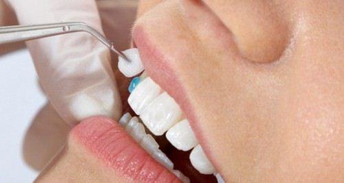 Trồng răng sứ toàn sứ có nên hay không?