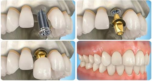 Vệ sinh răng miệng sau khi trồng răng implant hiệu quả